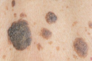 Cluster of seborrheic keratoses. These lesions can also appear singularly.