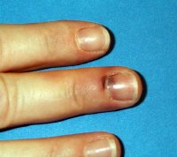 Old blood and bruising under a nail. Note what appears to be a Hutchinson's sign. But over several weeks, it should fade, while the patch of dark on the nail should move out as the nail grows.