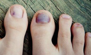 Toenail (Subungual Hematoma) vs. Melanoma: Visible Differences ...