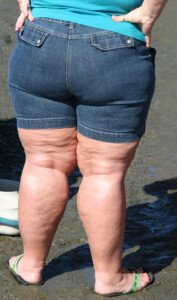 How Effective is Weight Loss for Arthritic Knee Pain?