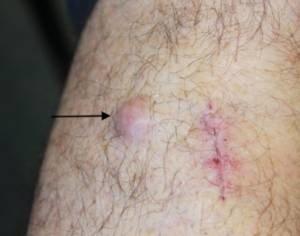 Local Skin Metastasis