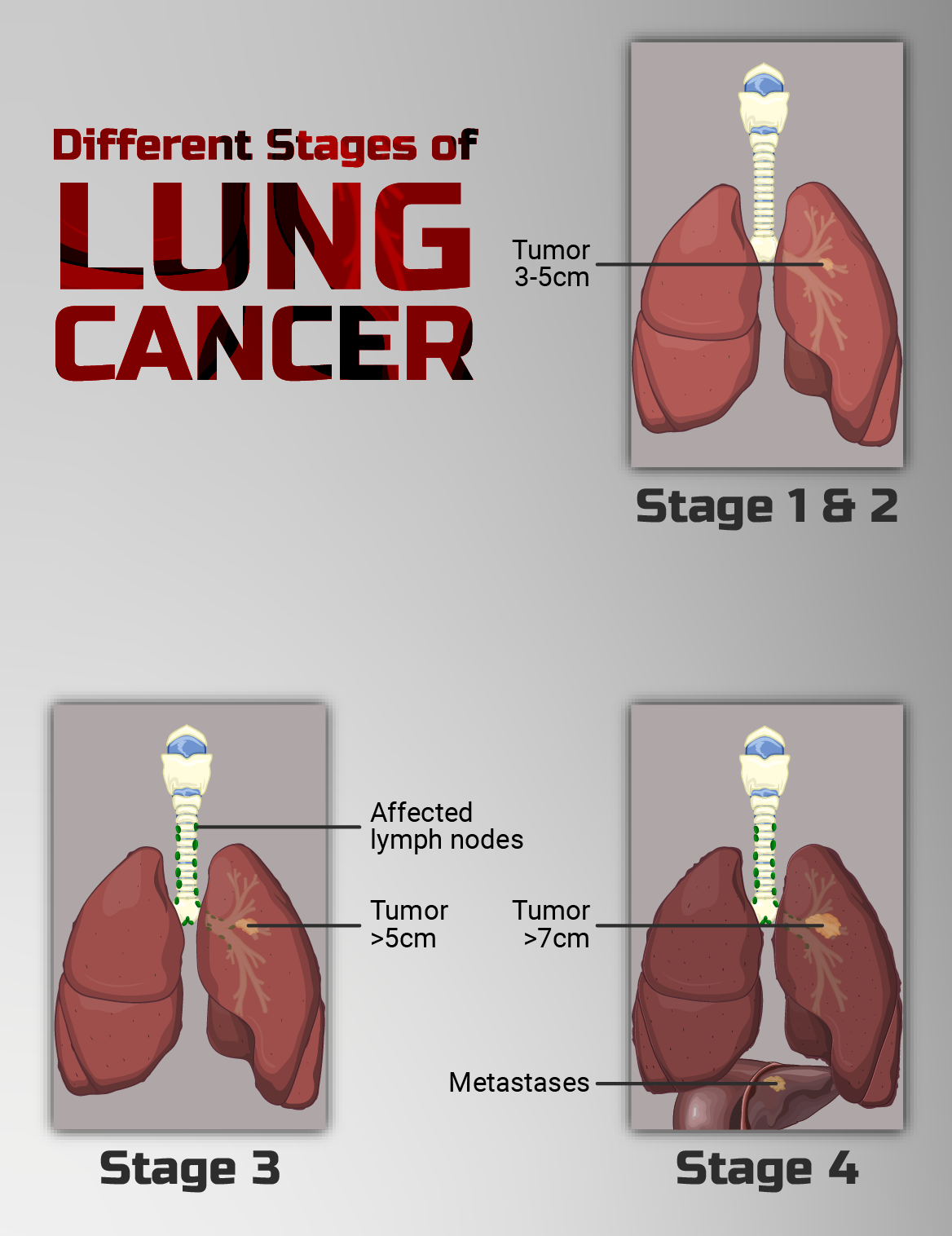 Why Is Lung Cancer So Difficult to Treat? Surgeon Answers
