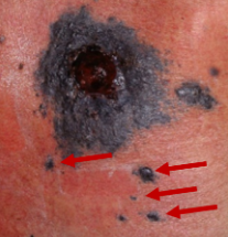 Satellite metastases (red arrows). The large legion is an untreated primary tumor.