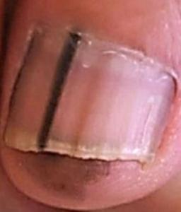 Subungual melanoma with Hutchinson's sign at top of nail. Ann Dermatol. 2018 Feb;30(1):36-40.