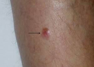 Can a Skin Cyst Ever Turn into a Melanoma?