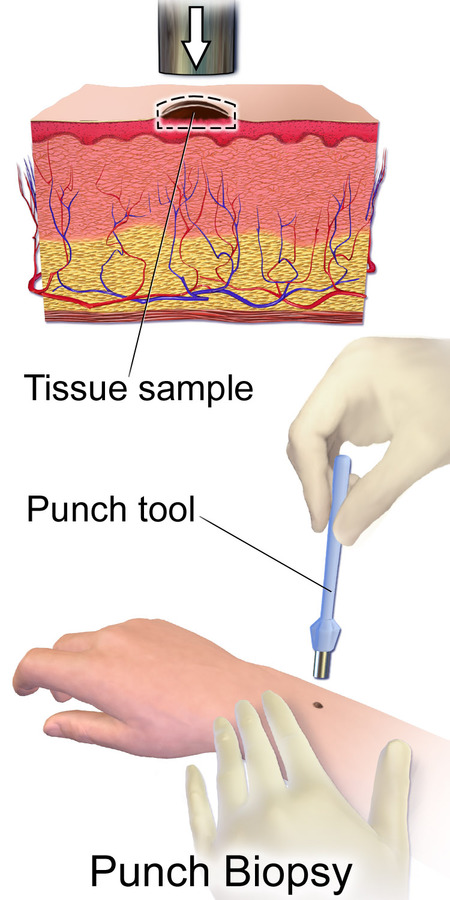 Does Punch Biopsy for Mole Removal Hurt?