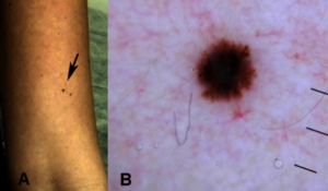 Tiny melanoma, 1.6 mm. Source: Dermatol Pract Concept. 2013 Apr. Copyright ©2013 Pellizzari et al.