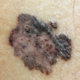 Why Does Melanoma Sometimes Turn a Mole Purple?