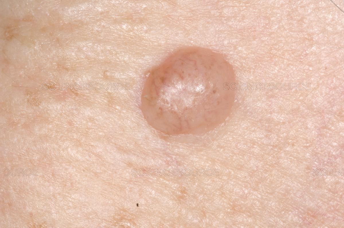 Are Moles that Stick Up More Likely to Become Melanoma?