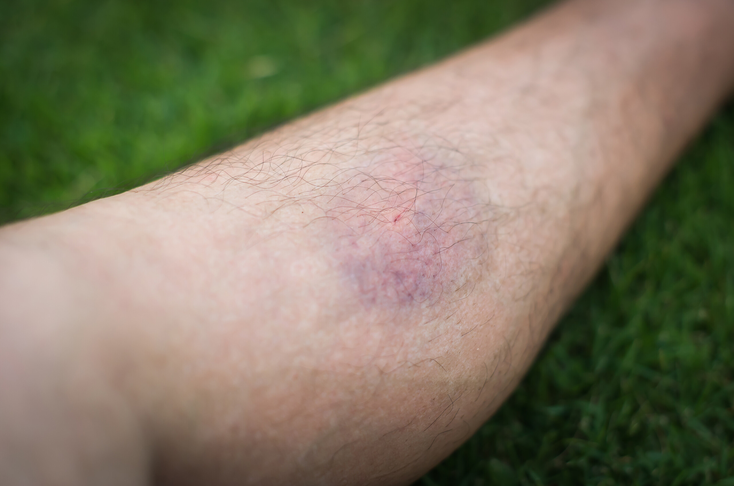 Harmless Bruise vs. Dangerous Blood Clot: the Difference?