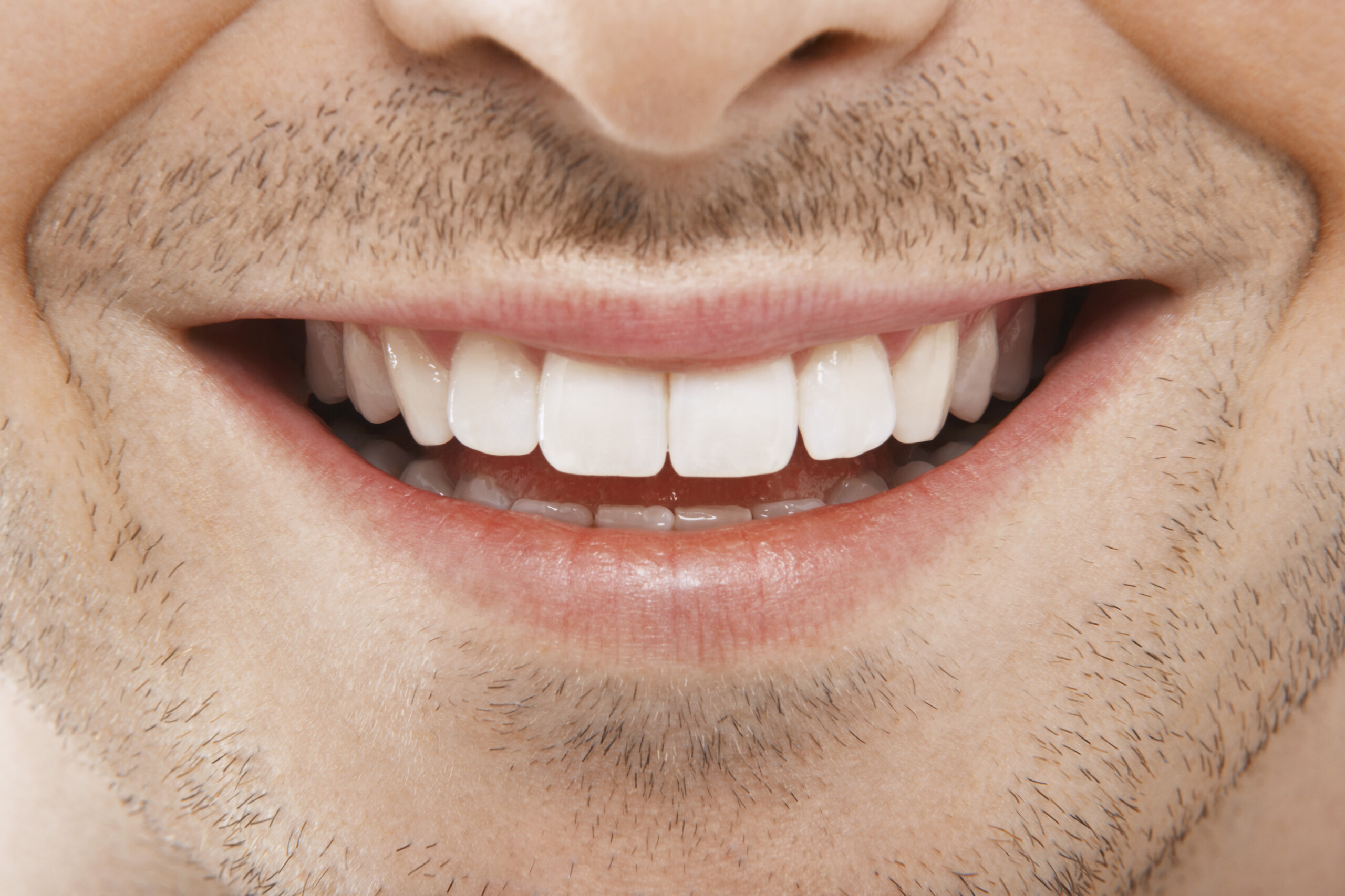 7 Common Orthodontic Issues that Can Be Solved by Braces