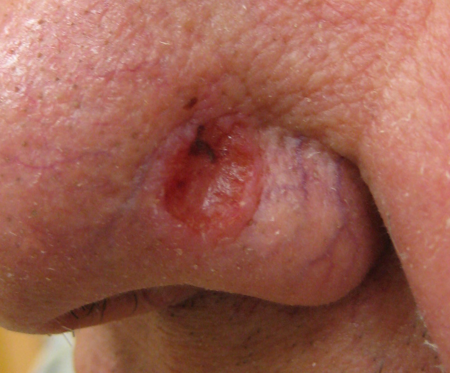 Why Does Basal Cell Carcinoma Affect the Nose so Much?