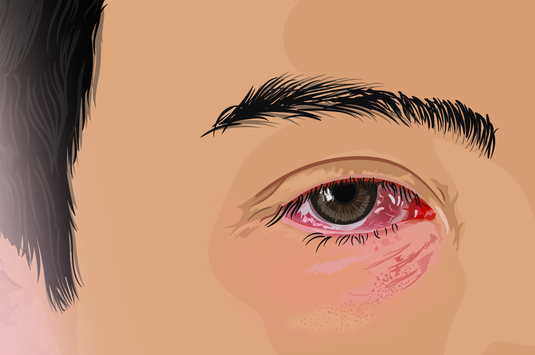 Blood in Eye After Sudden Bad Headache: Should You Worry?