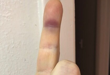 Sudden Purple Bruise on Underside of Index Finger